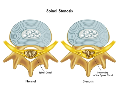 noraml spine compared to a spine with spinal stenosis